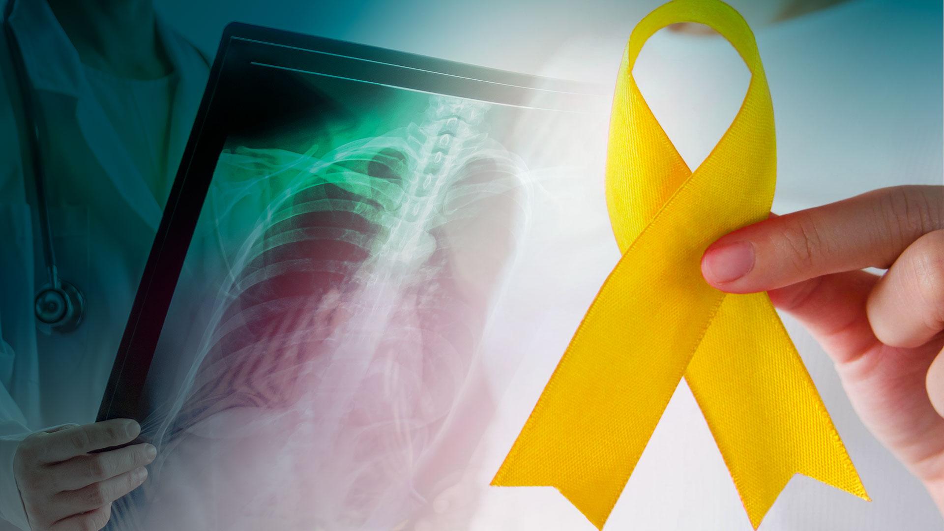 Tenho história familiar de câncer ósseo, qual meu risco de câncer?