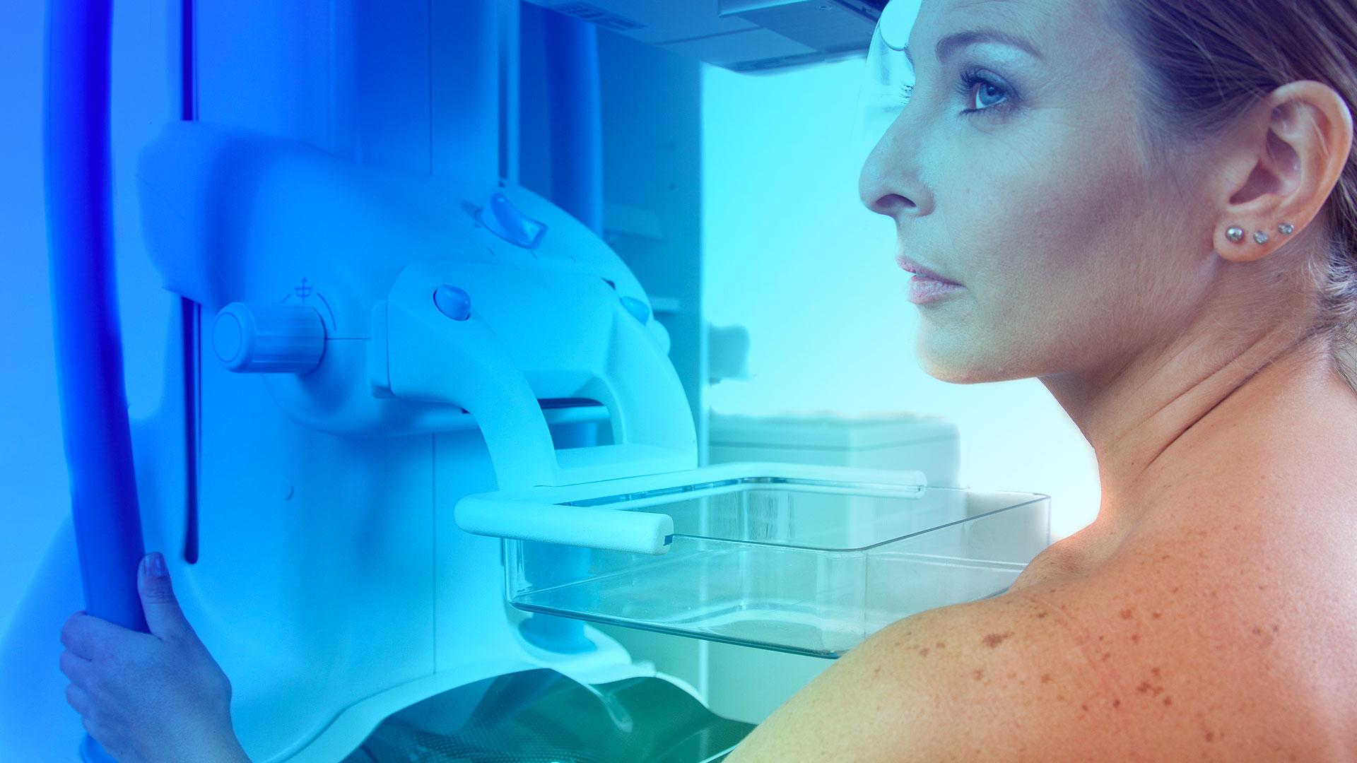 Tudo o que você precisa saber sobre suas mamografia