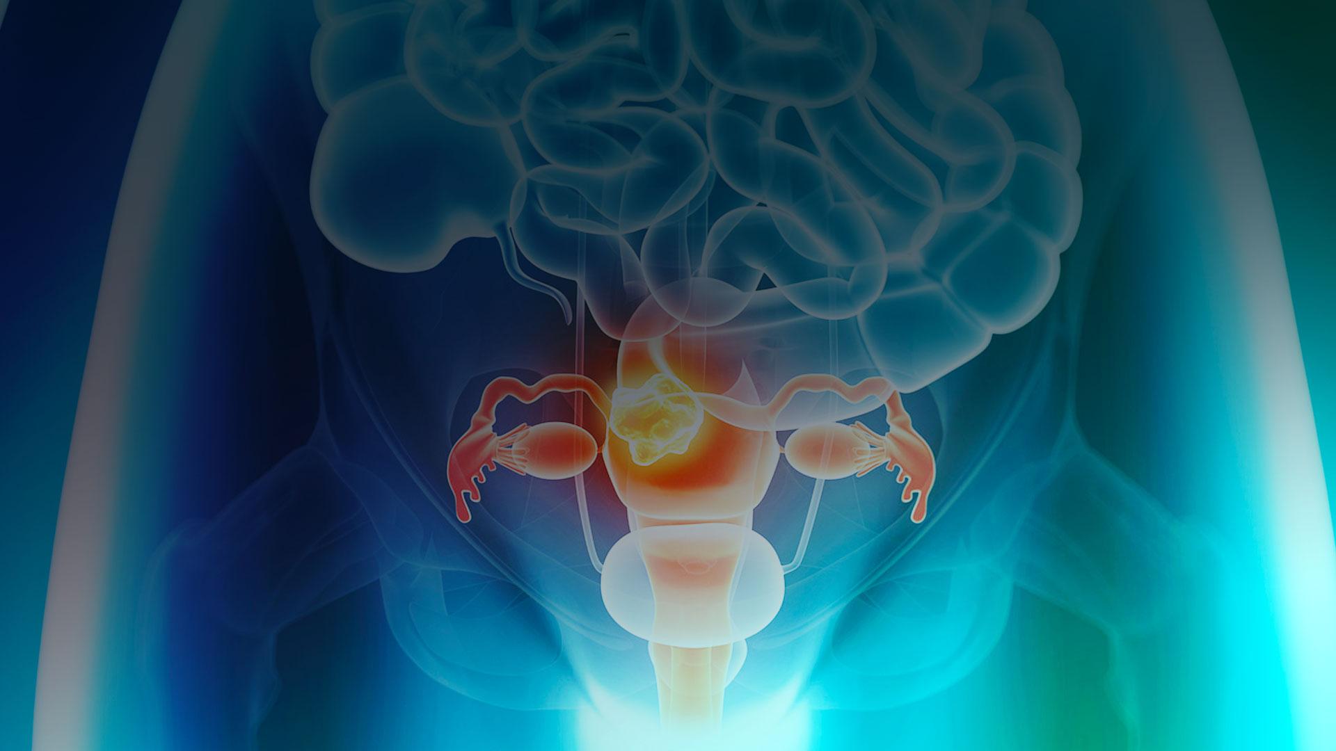 Exame de rotina para detecção de câncer ginecológico: o que você precisa saber