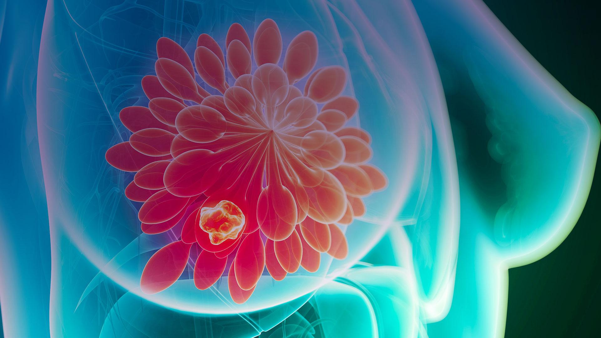 Tenho câncer de mama metastático qual é o meu prognóstico
